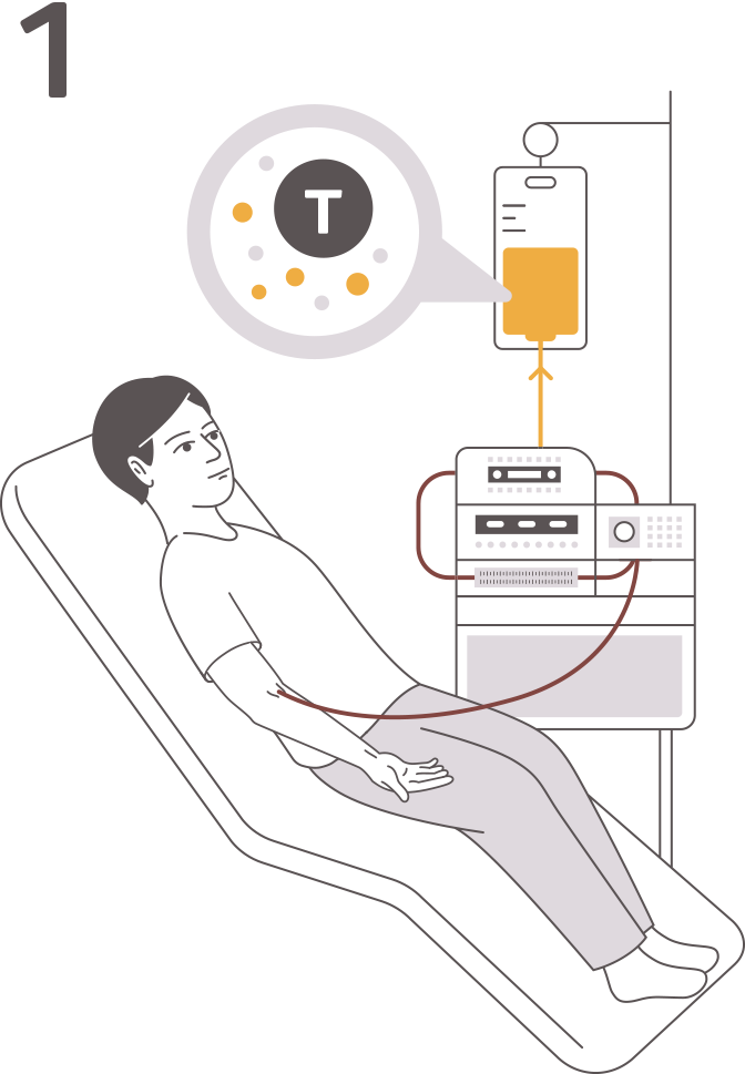 Figure illustrating the 4 steps of CAR T cell therapy: leukapheresis, manufacturing, infusion, and monitoring